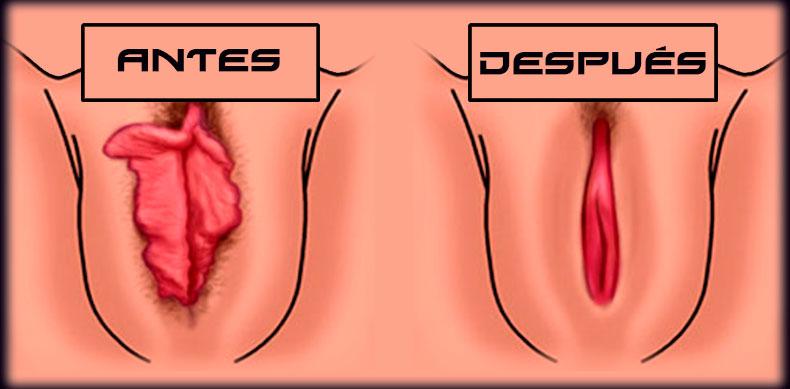 vaginoplastia1