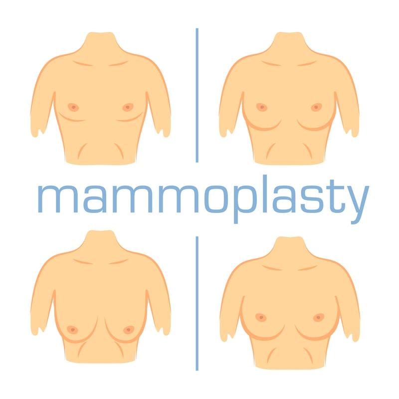 Lo mejor que puedes obtener de la mamoplastia